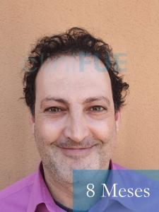 Paco 40 Albacete trasplante capilar 8 meses 1