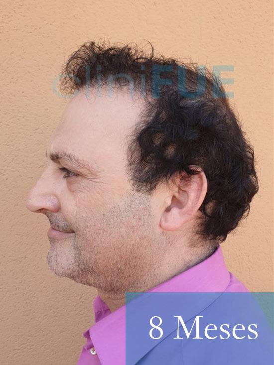 Paco 40 Albacete trasplante capilar 8 meses 3