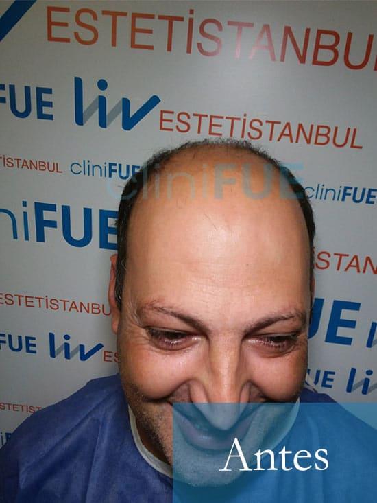 Paco 40 Albacete trasplante capilar Antes 1