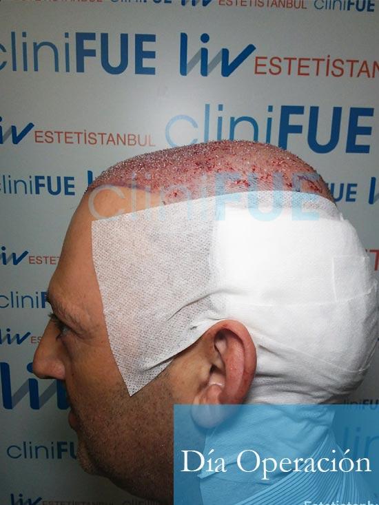 Paco 40 Albacete trasplante capilar Dia Operacion 6
