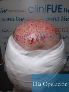 Paco 40 Albacete trasplante capilar Dia Operacion 7