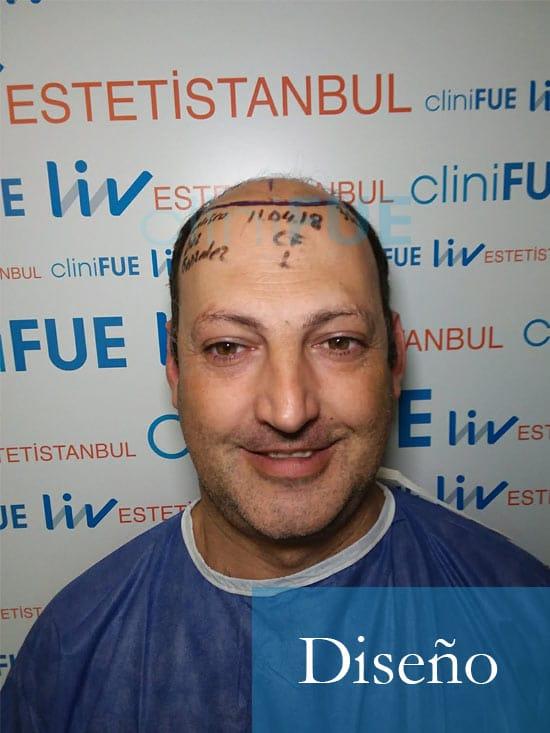 Paco 40 Albacete trasplante capilar Dia Operacion 1