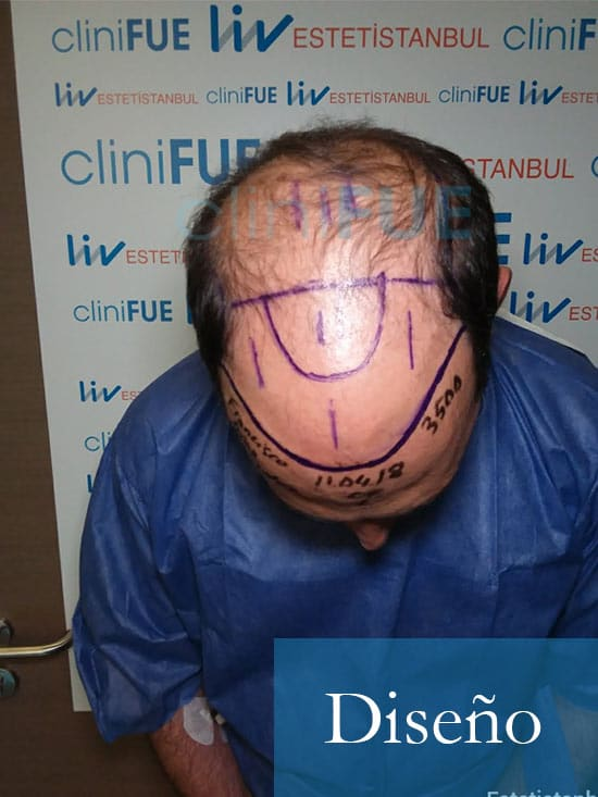 Paco 40 Albacete trasplante capilar Dia Operacion 2
