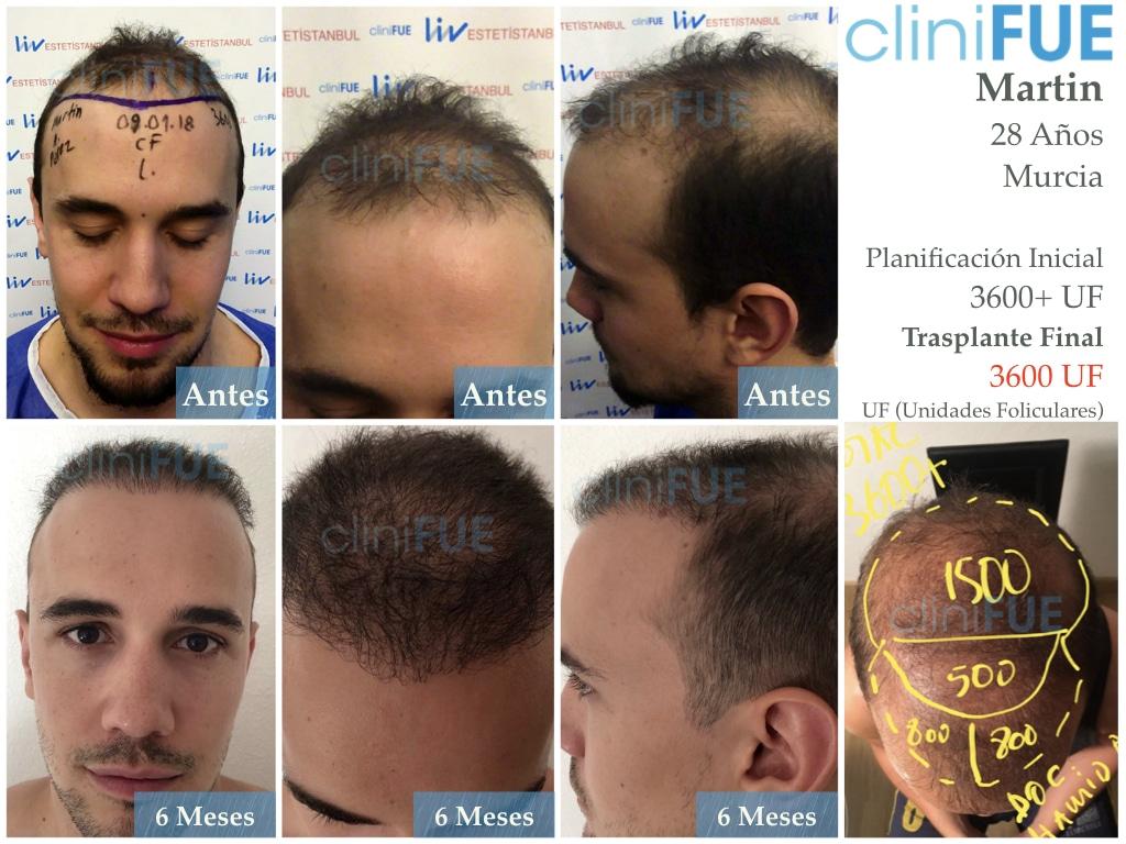 Martin 28 años Murcia trasplante capilar turquia 6 meses