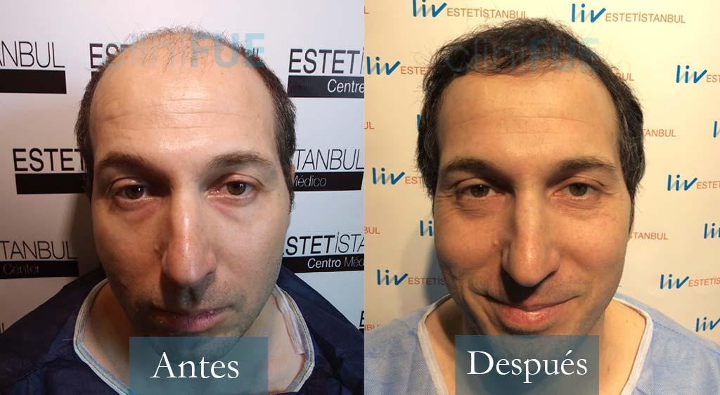 Trasplante capilar de Juan Antonio 36 Años de Mallorca con cliniFUE