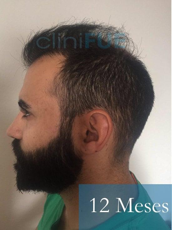 Alejandro 34 Murcia injerto capilar turquia 12 meses