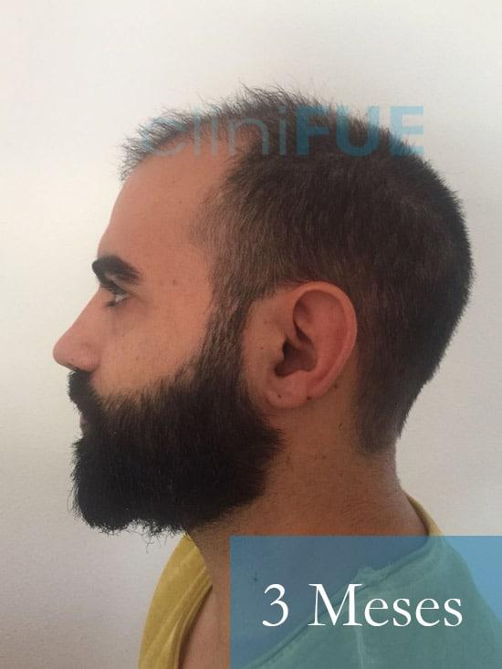 Alejandro 34 Murcia injerto capilar turquia 3 meses
