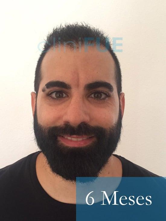 Alejandro 34 Murcia injerto capilar turquia 6 meses