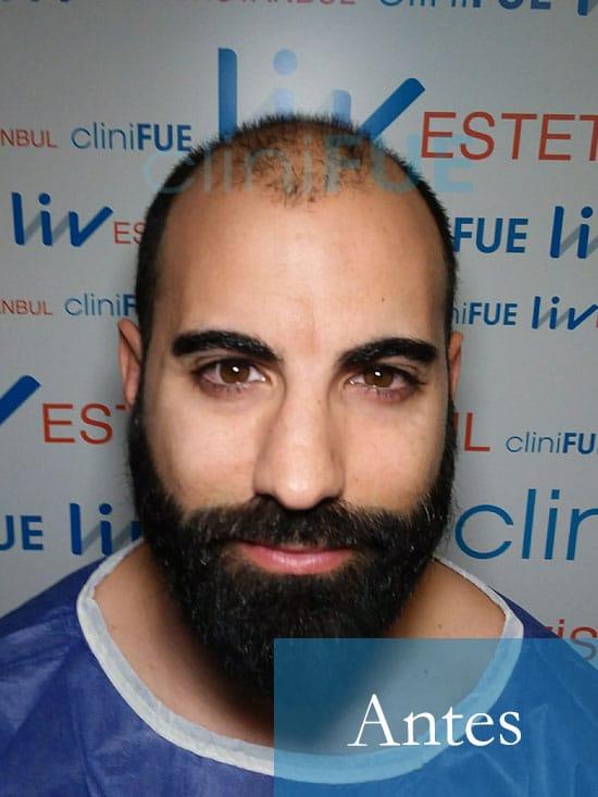 Alejandro 34 Murcia injerto capilar turquia Antes