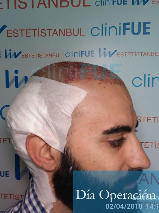 Alejandro 34 Murcia injerto capilar turquia Dia Operacion