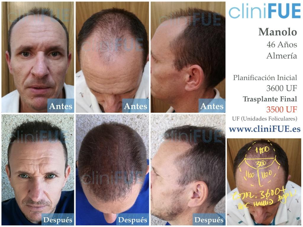 Manuel trasplante capilar 12 meses 1