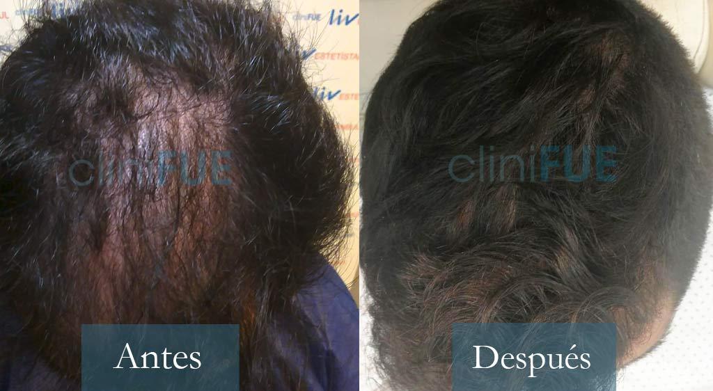 Oscar - 33 años - Baleares 3200UF trasplante de pelo
