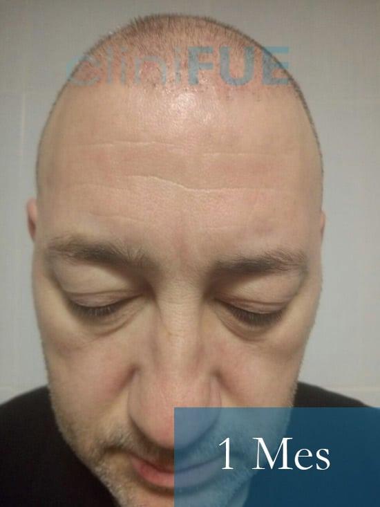 Chema 45 años Murcia trasplante capilar turquia 1 mes 1