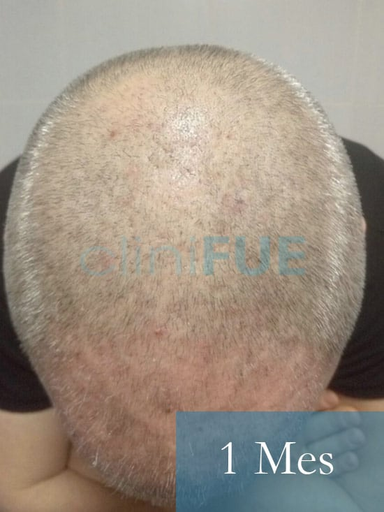 Chema 45 años Murcia trasplante capilar turquia 1 mes 2