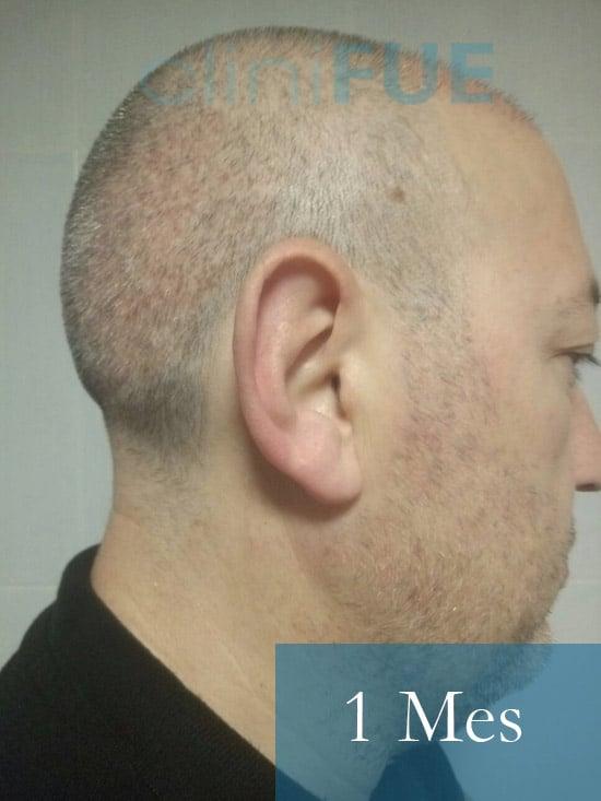Chema 45 años Murcia trasplante capilar turquia 1 mes 3