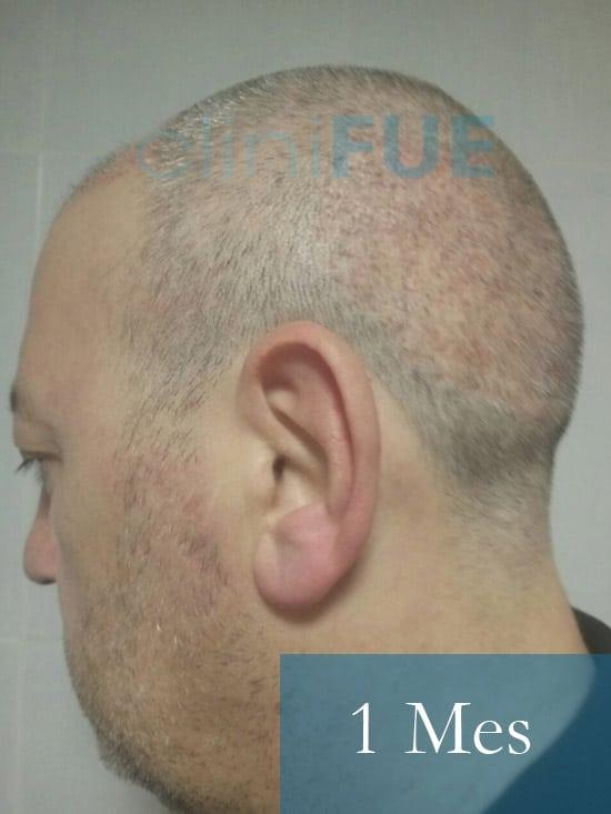 Chema 45 años Murcia trasplante capilar turquia 1 mes 4