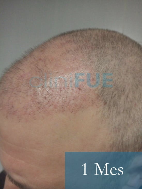 Chema 45 años Murcia trasplante capilar turquia 1 mes 5