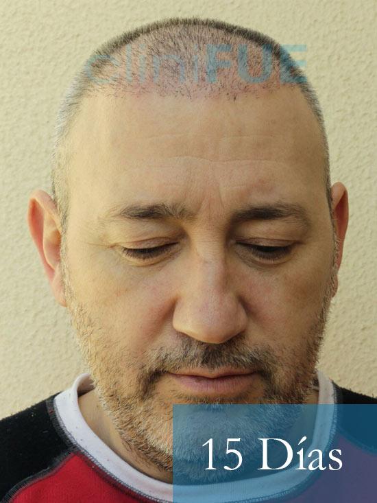 Chema 46 años Murcia trasplante capilar turquia 15 dias 5