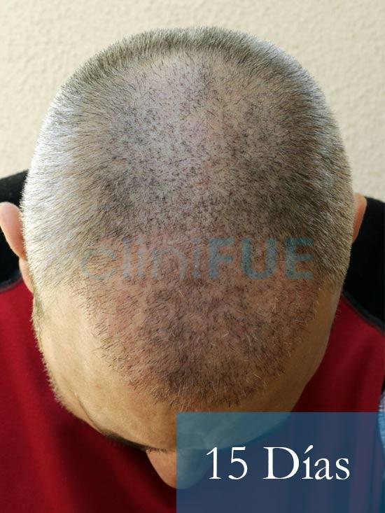 Chema 46 años Murcia trasplante capilar turquia 15 dias 2