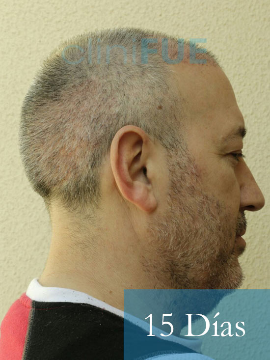 Chema 46 años Murcia trasplante capilar turquia 15 dias 4