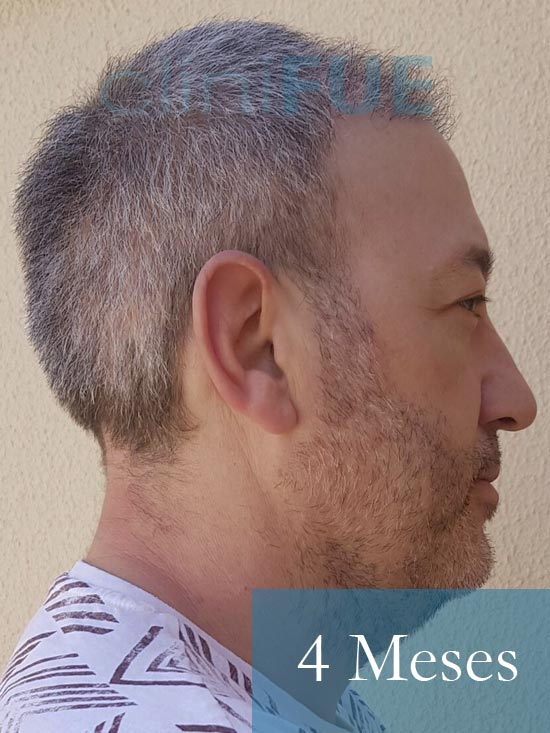 Chema 46 años Murcia trasplante capilar turquia 4 meses 4
