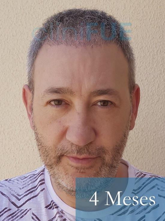 Chema 46 años Murcia trasplante capilar turquia 4 meses 1