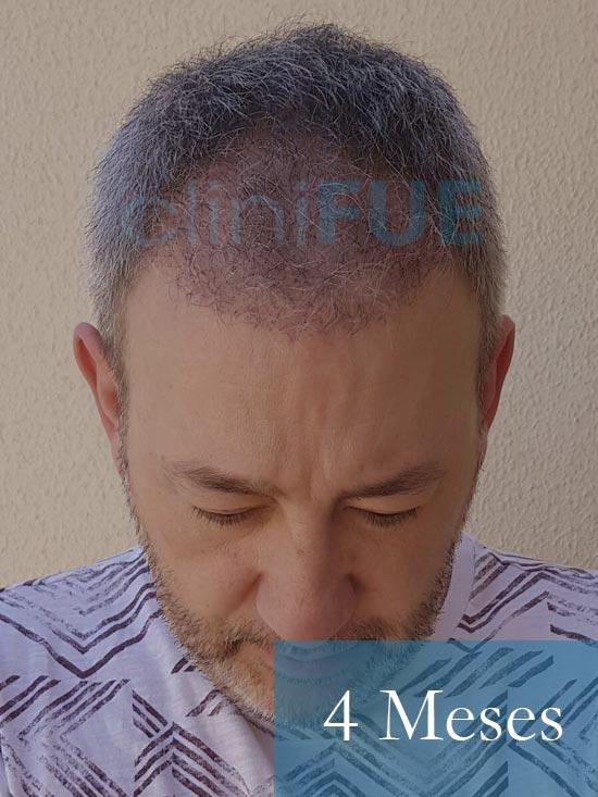 Chema 46 años Murcia trasplante capilar turquia 4 meses 2