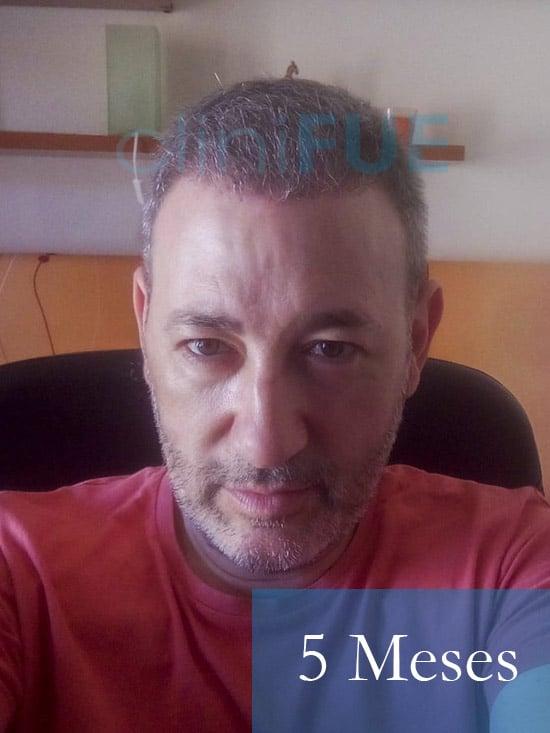 Chema 46 años Murcia trasplante capilar turquia 5 meses 1