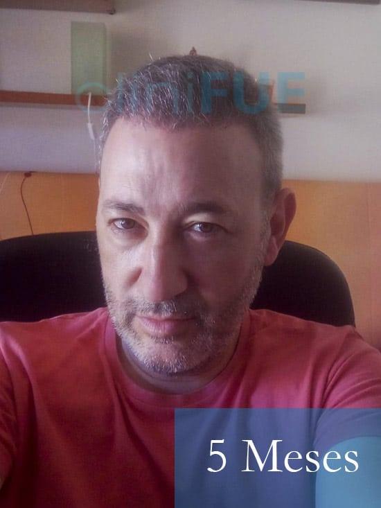 Chema 46 años Murcia trasplante capilar turquia 5 meses 2