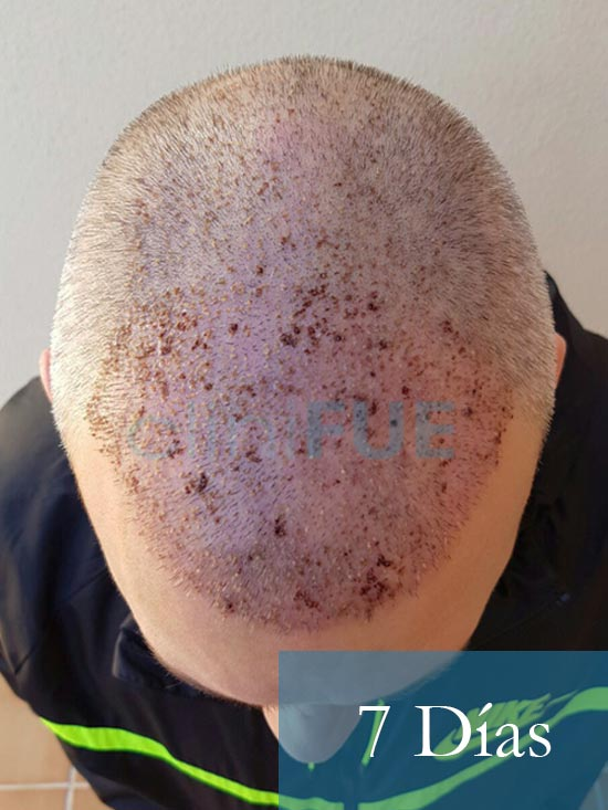 Chema 46 Murcia trasplante capilar 7 dias 3