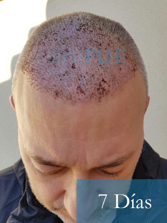 Chema 46 Murcia trasplante capilar 7 dias 2