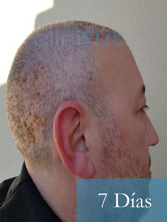Chema 46 Murcia trasplante capilar 7 dias 4