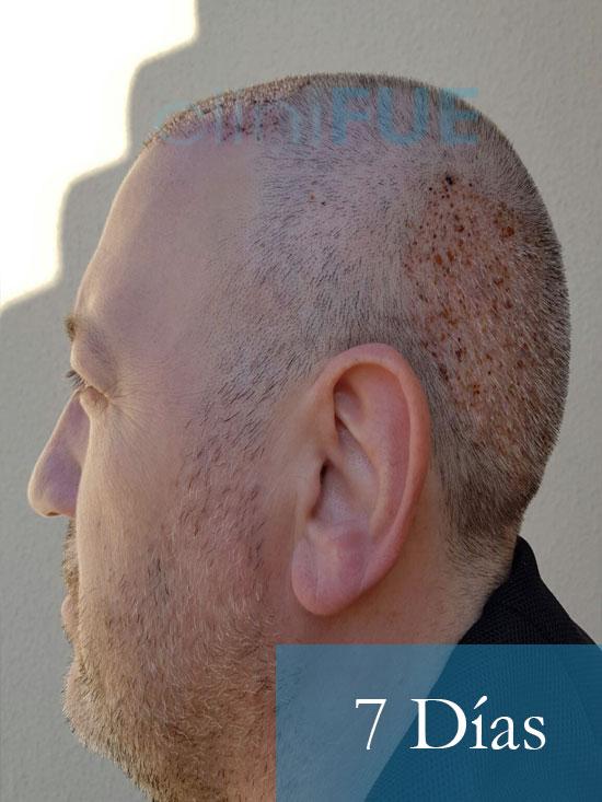Chema 46 Murcia trasplante capilar 7 dias 5