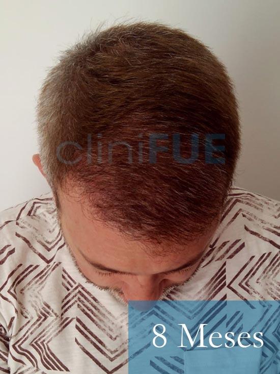 Chema 46 años Murcia trasplante capilar turquia 8 meses 2