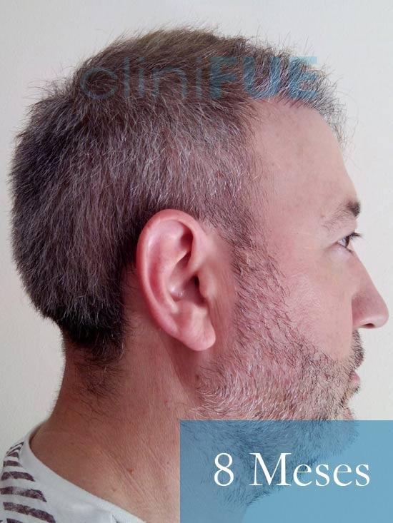 Chema 46 años Murcia trasplante capilar turquia 8 meses 3