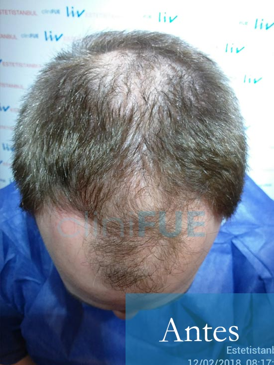 Chema 46 Murcia trasplante capilar Antes 2