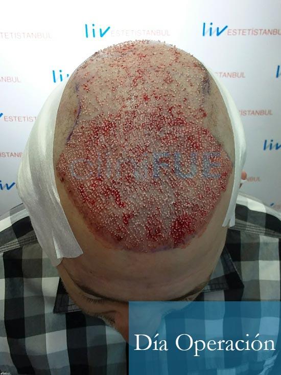Chema 46 Murcia trasplante capilar Dia Operacion 4