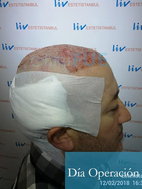 Chema 46 Murcia trasplante capilar Dia Operacion 5