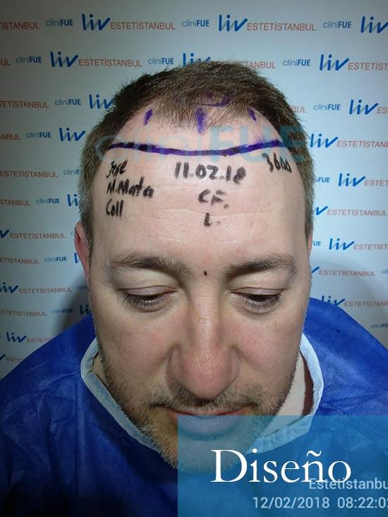 Chema 46 Murcia trasplante capilar Dia Operacion