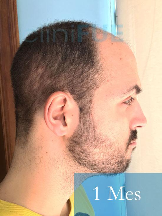 Christian implante capilar Turquia 1 Mes 4