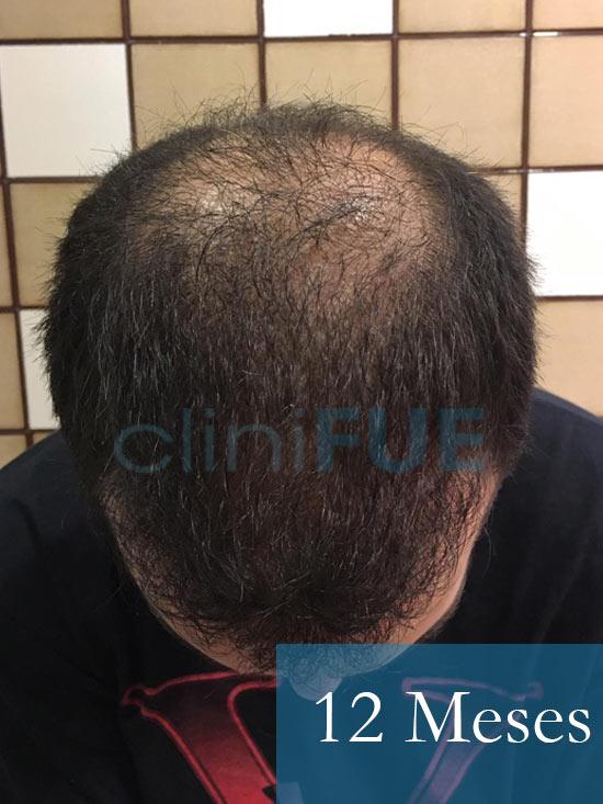 Christian implante capilar Turquia 12-meses 3
