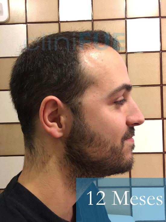 Christian implante capilar Turquia 12-meses 4
