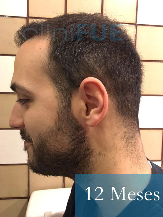 Christian implante capilar Turquia 12-meses 5