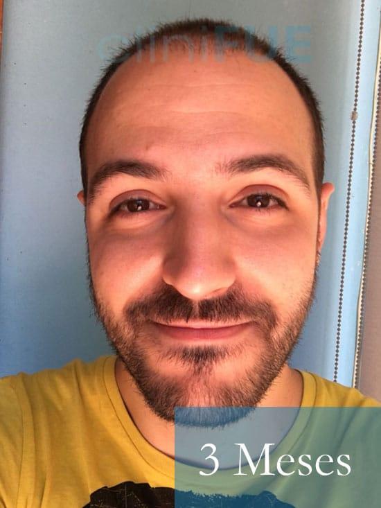 Christian implante capilar Turquia 3 meses 1