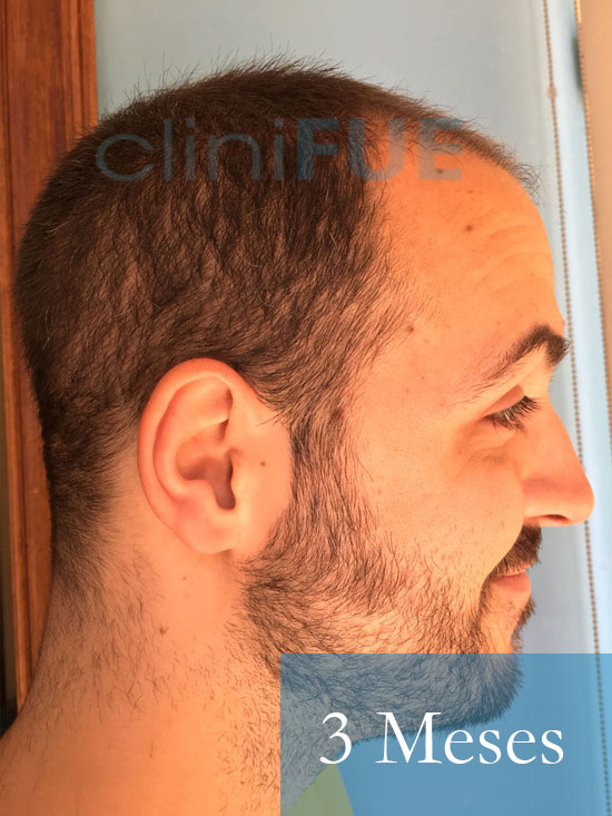 Christian implante capilar Turquia 3 meses 4