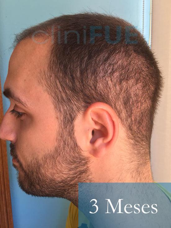 Christian implante capilar Turquia 3 meses 5