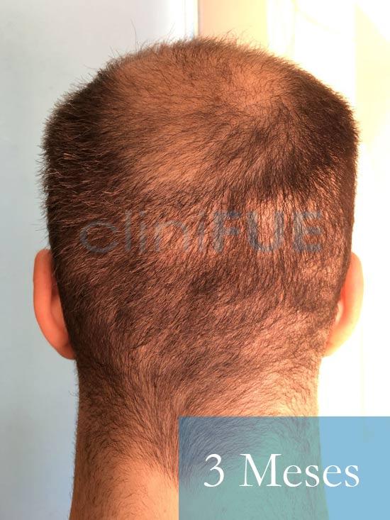 Christian implante capilar Turquia 3 meses 6