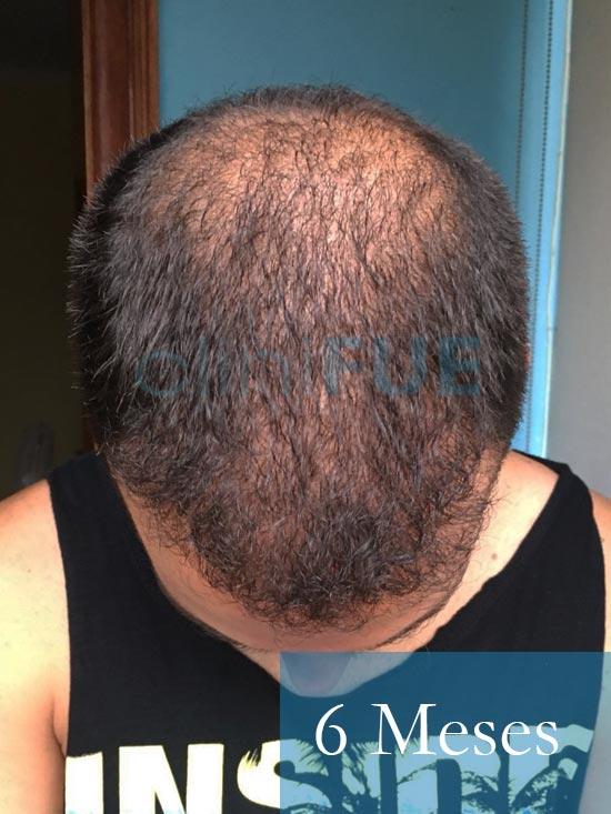 Christian implante capilar Turquia 6 meses 3