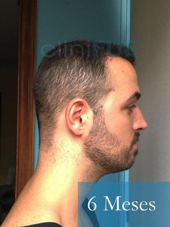 Christian implante capilar Turquia 6 meses 4