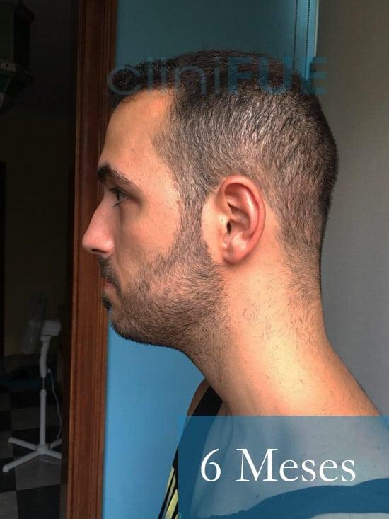 Christian implante capilar Turquia 6 meses 5